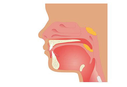 Common Child Diseases - Tonsillitis