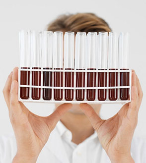 Complete Blood Panel Test