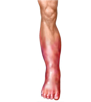 Deep Vein Thrombosis in Leg Symptoms