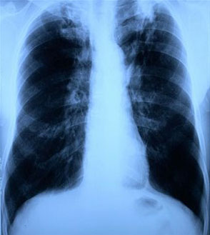Infectious Lung Disease Caused By Bacteria