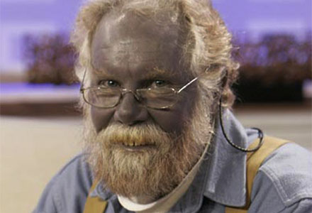 Rarest Diseases - Argyria