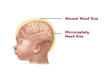Rarest Diseases - Microcephaly