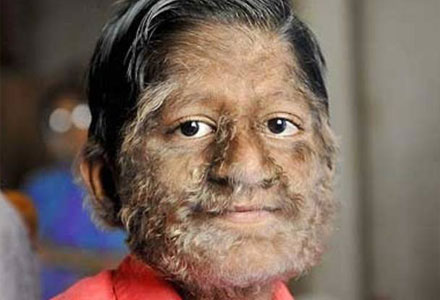 Rarest Diseases - Werewolf Syndrome