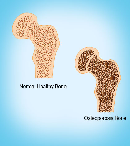 Facts about Osteoporosis for Women