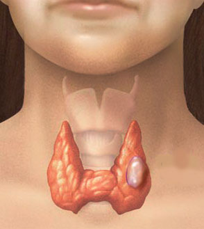 Secondary Thyroid Cancer Young Adults