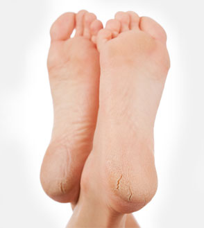 Soften Dry Cracked Heels Naturally