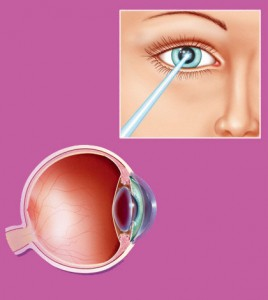 Lasik Surgery For Nearsightedness