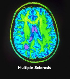 Multiple Sclerosis Treatment - Placental Cells