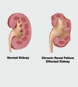 Chronic Renal Failure Signs And Symptoms