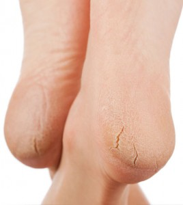 Painful Dry Cracked Heels