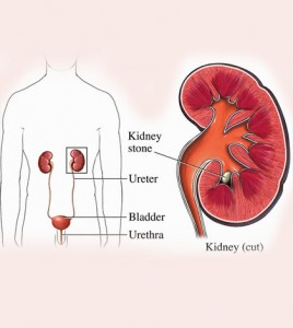Types Of Kidney Disease In Humans