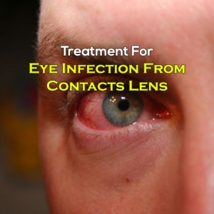 Treating Eye Infection From Contacts Usage