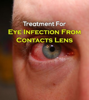 How to treat a eye infection from contacts