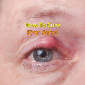 How To Cure Stye Eye?