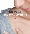 Red Mole Removal