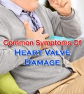 Symptoms of Heart Valve Damage