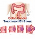 Colon Cancer Treatment By Stage