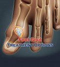 Foot Gout Treatment