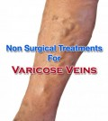 Non Surgical Varicose Vein Treatment