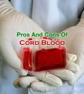 Cord Blood Pros And Cons
