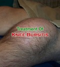 Treatment Of Knee Bursitis