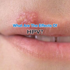 What Are The Effects Of HPV