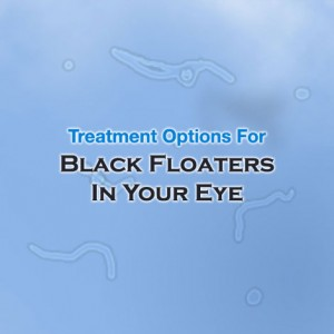 Black Floaters in your Eye