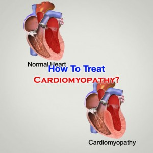 How To Treat Cardiomyopathy