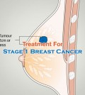Treatment For Stage 1 Breast Cancer