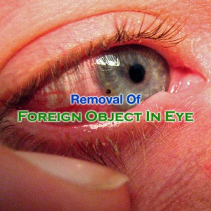 Foreign Object In Eye Removal
