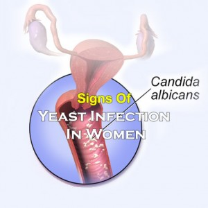 Signs Of A Yeast Infection In Women