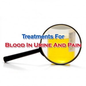 Treatments For Blood In Urine And Pain