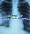 Fungal Lung Infection Treatment