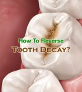 How To Reverse Tooth Decay