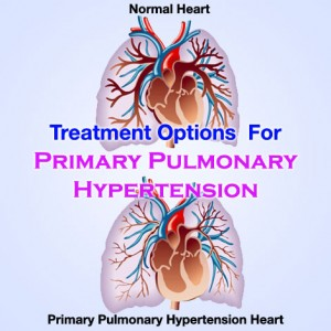 Primary Pulmonary Hypertension Treatment