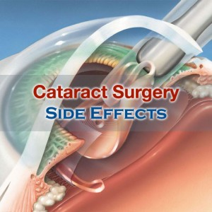 Cataract Surgery Side Effects