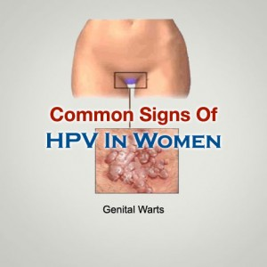 Signs Of HPV In Women