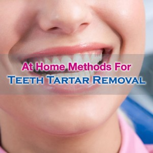 Teeth Tartar Removal At Home