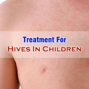Treatment for Hives in Children