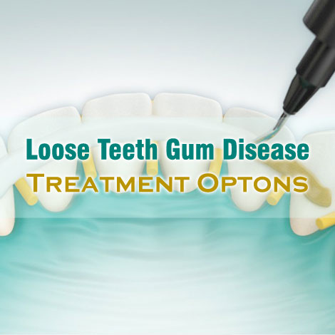 Loose Teeth Gum Disease Treatment Options To Opt From