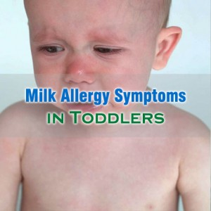 Common Milk Allergy Symptoms In Toddlers