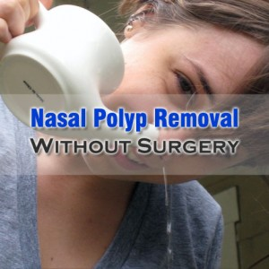 Nasal Polyp Removal Without Surgery