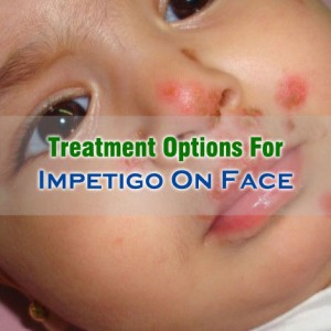 Treatment For Impetigo On Face