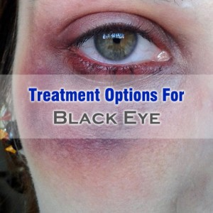 Black Eye Treatment