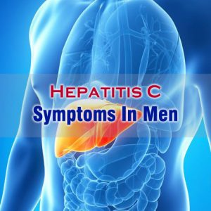 Hepatitis C Symptoms In Men