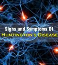 Huntington's Disease Signs and Symptoms