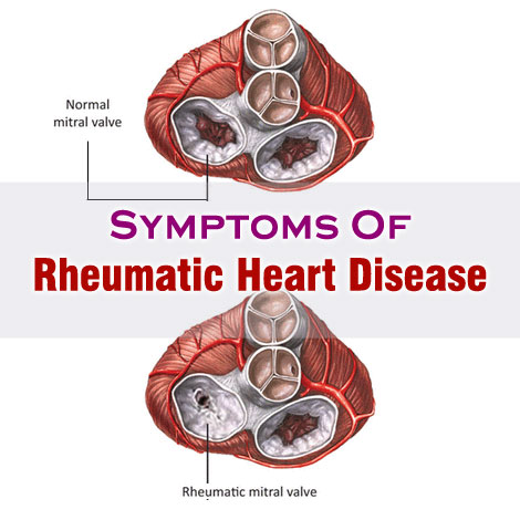 rheumatic heart disease thesis Thesis (ms)--boston university, 1949 skip to main content search the history of over 324 billion web pages on the internet search search the wayback machine.