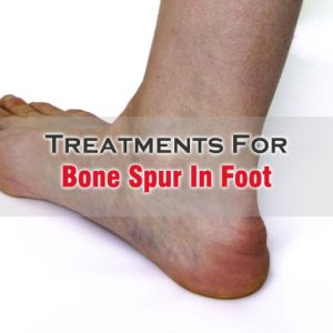 Spur In Foot Treatment