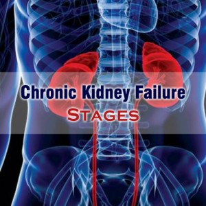 Stages of Chronic Kidney Failure