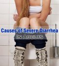 Causes of Severe Diarrhea In Adults